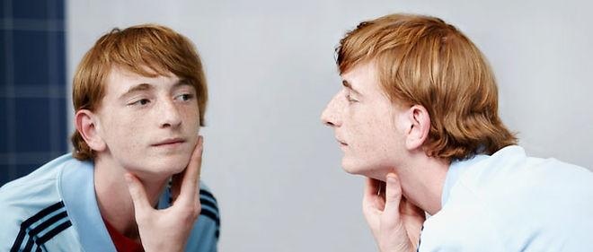 De nombreux médicaments peuvent provoquer une acné © Olivier Cadeaux Corbis faf1b4a9fed