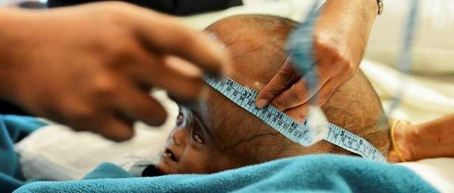Roona Begum est née avec une grave anomalie neurologique qui provoque une pression sur le cerveau.