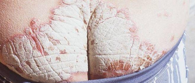 guerir psoriasis