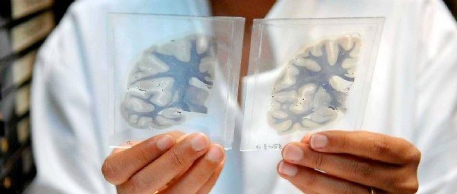 Le prix Nobel de médecine 2014 récompense les travaux sur le cerveau menés par John O'Keefe, May-Britt et Edvard Moser.