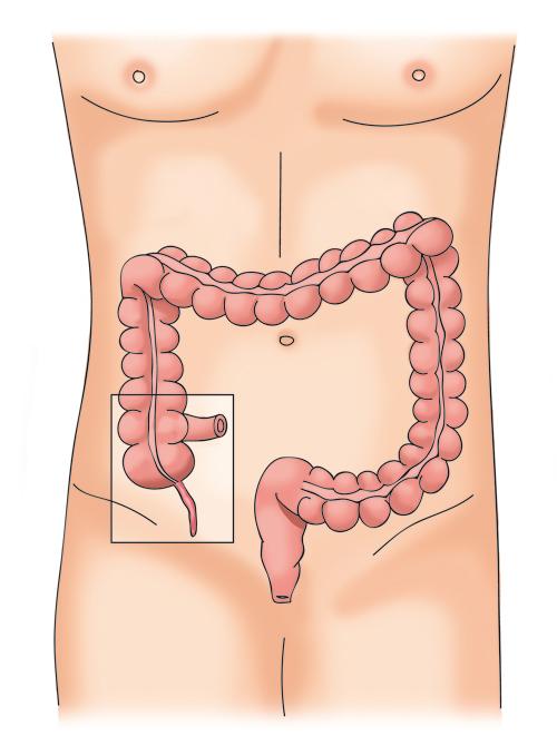 L'appendice