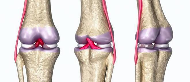 Anatomie du genou. ©Alexandr Mitiuc