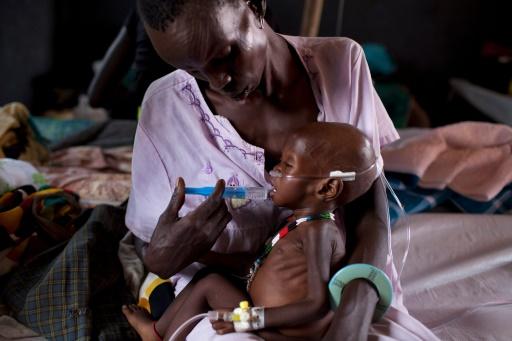 Un enfant souffrant de malnutrition sévère dans un camp de MSF à Minkamman au Soudan du Sud le 3 mars 2014 © JM LOPEZ AFP/Archives