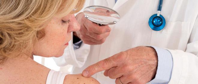 Cancer de la peau : controverse autour du dépistage annuel - Le Point
