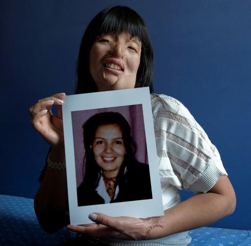 La Colombienne Nubia Espitia, 33 ans, pose chez elle le 5 mars 2012 avec une photo d'elle avant qu'elle soit défigurée à l'acide  © LUIS ACOSTA AFP/Archives