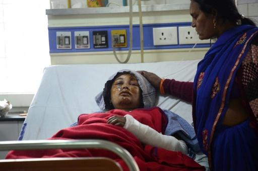 Une rescapée de l'accident de l'express Indore-Patna qui a fait 146 morts, à l'hôpital de Kanpur, le 21 novembre 2016 © Sanjay KANOJIA AFP