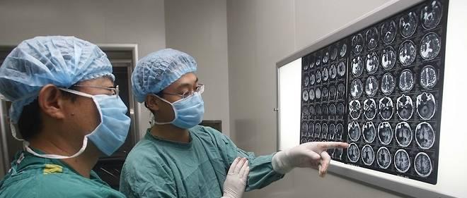 Dans les cas rebelles aux médicaments, il est possible de retirer chirurgicalement la région du cerveau qui déclenche la crise, à condition qu'elle ne soit pas vitale.