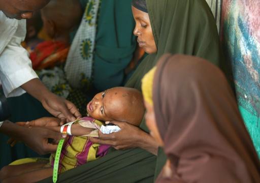 Un enfant dénutri est pris en charge par un travailleur humanitaire dans un centre de santé de l'Unicef à Baidoa, le 15 mars 2017 dans le sud-ouest de la Somalie © TONY KARUMBA AFP