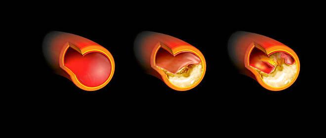 Formation d'une plaque d'athérome dans une artère.