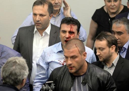 le leader de l'opposition de gauche Zoran Zaev, le visage ensanglanté, dans le chaos qui a suivi l'irruption dans l'hémicycle des sympathisants du VMRO-DPMNE de l'ex-Premier ministre Nikola Gruevski, le 27 avril 2017 à Skopje  © Stringer AFP