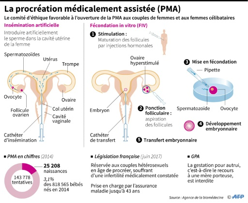 La procréation médicalement assistée (PMA) © Paz PIZARRO AFP