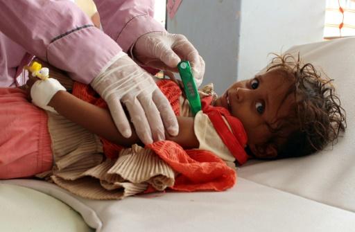 Un enfant yéménite souffrant peut-être du choléra pleure dans un hôpital de Sanaa, le 12 août 2017 © STRINGER AFP/Archives