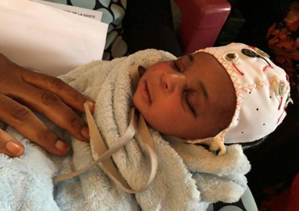 Le bonnet M-EEG porté par un nouveau-né épileptique durant un examen de contrôle. ©  Guinea Epilepsy project