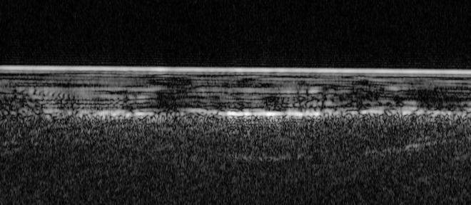 Sur cette image radar se cache la première étendue d'eau liquide jamais découverte sur Mars. Un lac pour le moins salé caché sous la glace à 1,5 kilomètre de profondeur.  ©ESA/NASA/JPL/ASI/UNIV. ROME / HA