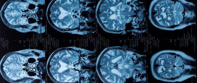 Scanner d'un cerveau humain (illustration).