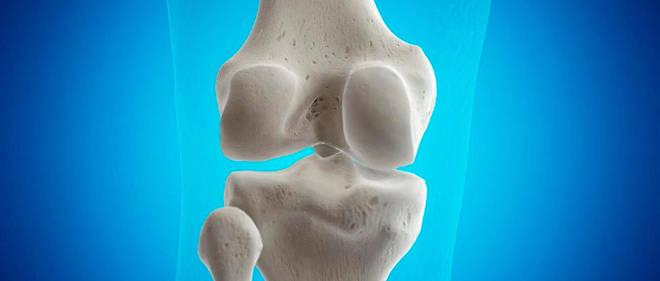 L'arthrose est un mécanisme qui conduit à la dégradation du cartilage articulaire qui va peu à peu s'amincir, ce qui se traduira radiologiquement par un rapprochement des pièces osseuses. Image d'illustration.