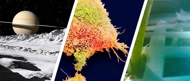 Sciences : un logiciel pour détecter le cancer du col de l'utérus