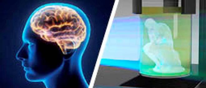 Les sciences sens dessus dessous: implant antiparkinson