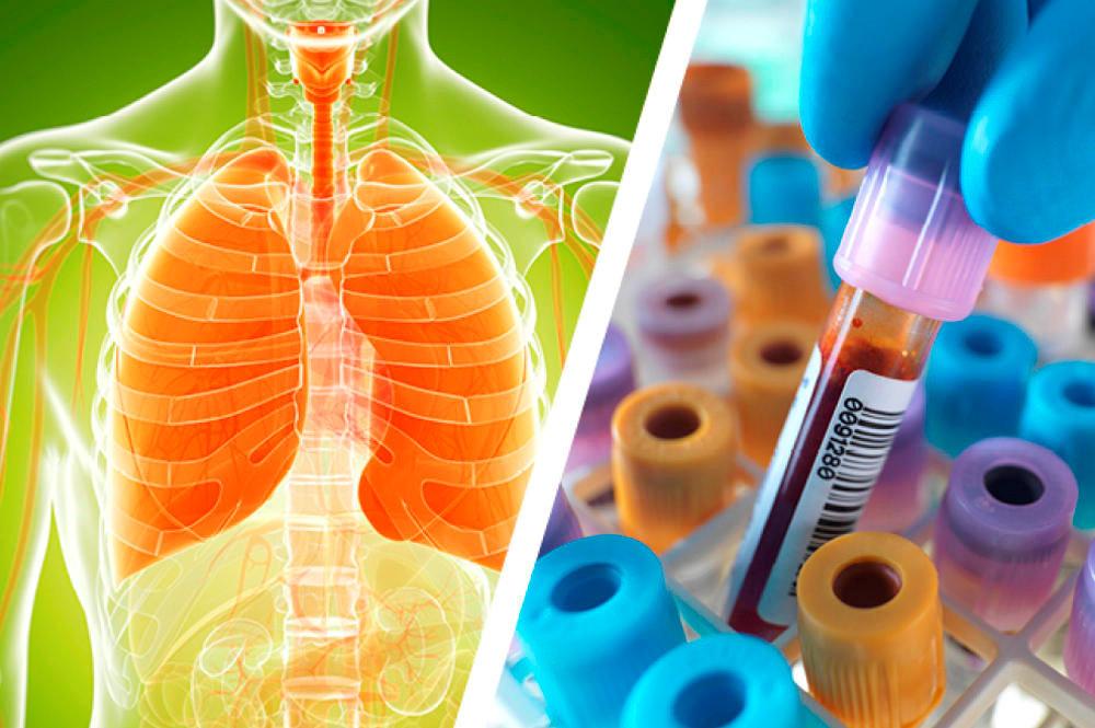 Du nouveau sur la santé - Trop d'hygiène tue l'hygiène