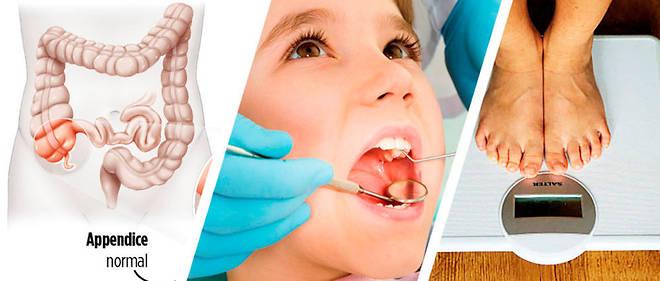 Santé – Des dents propres pour des artères saines