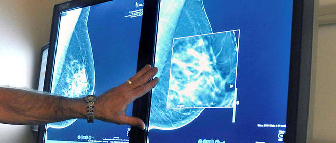 Cancers : la promesse de nouveaux traitements encourageants - Le Point