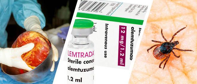 Santé - Le médicament dangereux du mois: Lemtrada