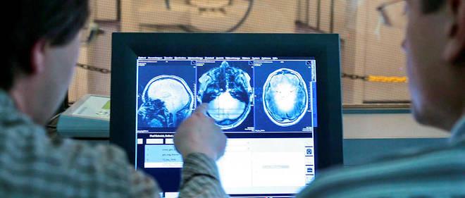 La télé-expertise permet d'améliorer le niveau de tous les médecins et d'aider ceux qui exercent seuls, loin des grands CHU