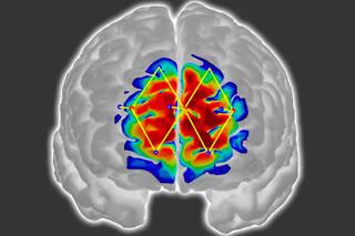 Les signaux captés pour mesurer la douleur viennent du cortex préfrontal, zone sensiblement liée à la perception de celle-ci.